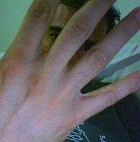 Temblor dedo pulgar izquierdo