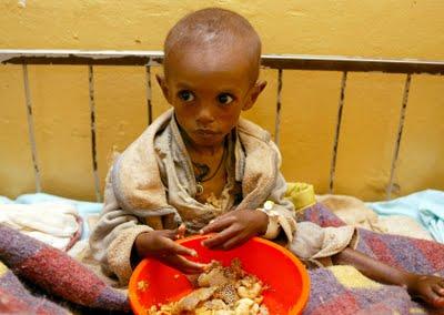 Niño con  sida (2)