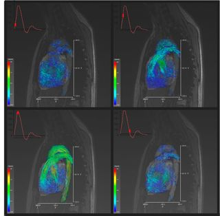 Flujo sanguíneo durante un pulso cardiaco. La simulación numérica está permitiendo conocer más y mejor el comportamiento del cuerpo humano (Fuente CIMNE)