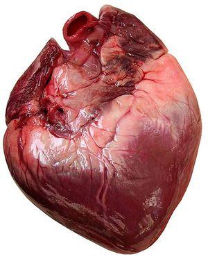 CORAZON-Paro cardiaco