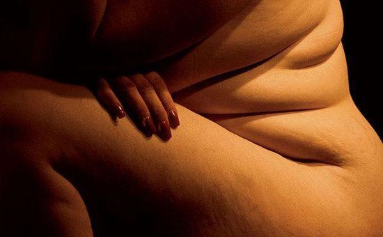 Obesidad (2)