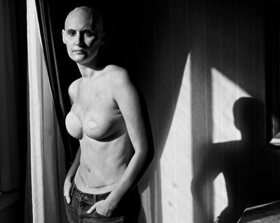 Facebook-mastectomy-photos-of-breast-cancer-survivors