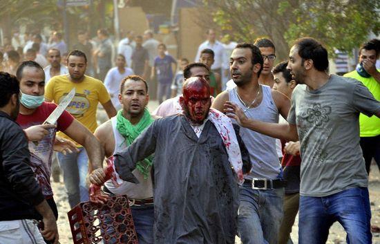 Un partidario de Morsi, herido durante la manifestación de este domingo en El Cairo / Foto: EFE