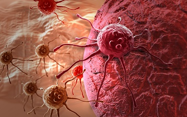 Bigstock-Cancer-Cell-46771351_resized