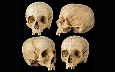 Bigstock_Human_Skull_in_four_angles_on__19484462 resized