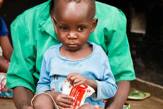 Hambruna Malawi niño IMG_4970