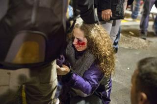 Pierde-impacto-disparo-Catalunya-manifestacion_EDIIMA20121115_0219_15